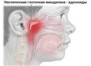 Аденоиды у детей и взрослых — симптомы и лечение.